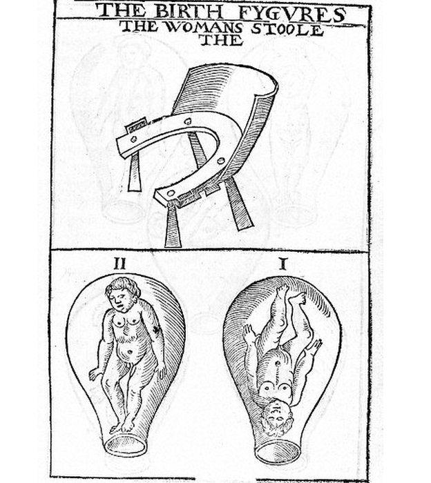 Ilustración del siglo XVI de las sillas para parir (arriba) y de la posición del bebé. WELLCOME LIBRARY