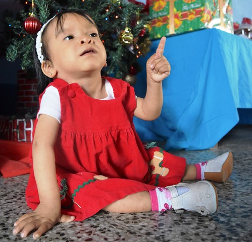 Niña de 4 años  pesa 18 libras. (Foto Prensa Libre: Oswaldo Cardona)
