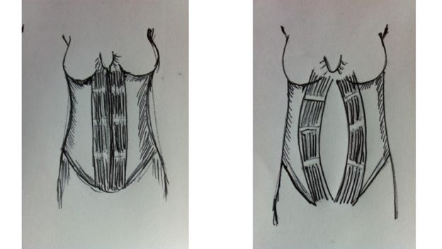 A veces el hueco abdominal se cierra naturalmente tras el embarazo y a veces se queda abierto. (CORTESÍA DE NHS WALES)