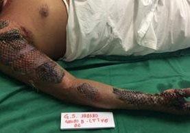 La piel del pescado se deja por varios días, dependiendo de la gravedad de las quemaduras. (Foto, IJF)