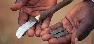 Muchos se hacen pasar por expertos para practicar la circuncisión en África. (Foto Prensa Libre: del sitio dialogosdelsur.org)