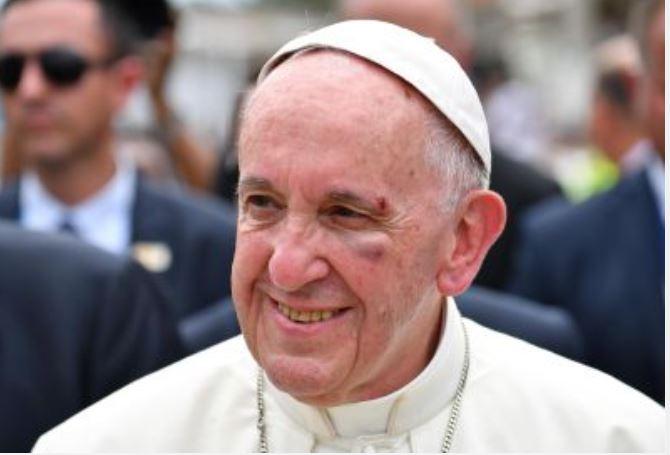 MUNDO   El papa Francisco se golpeó la cara contra el papamóvil
