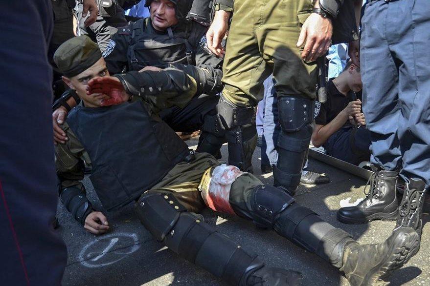 Médicos militares atienden a otro policía herido durante los enfrentamientos con opositores de la reforma constitucional en el Parlamento. (Foto Prensa Libre: EFE).