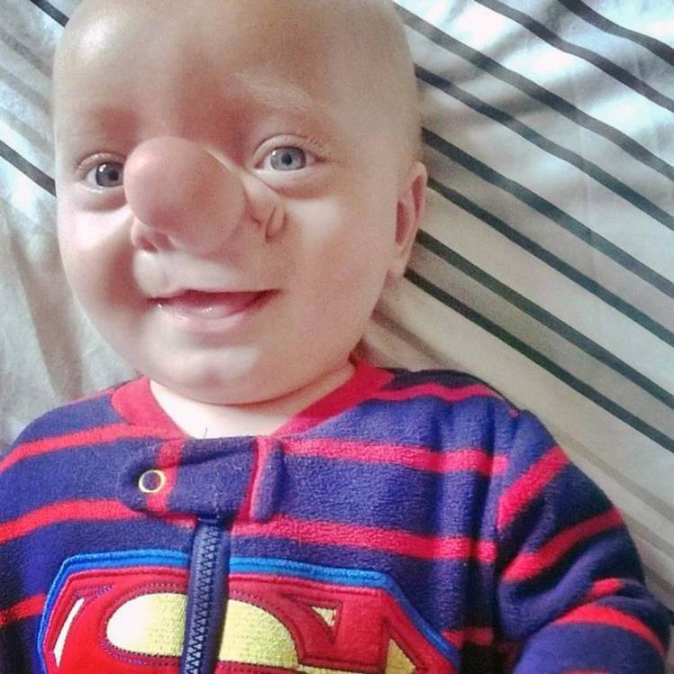 Pic By HotSpot Media - BOY WHOSE BRAIN GREW IN NOSE IS REAL-LIFE PINOCCHIO - IN PIC - Ollie Trezise, before his surgery to remove the sac of brain fluid on his nose. - A little boy whose brain grew inside his nose has been described as the