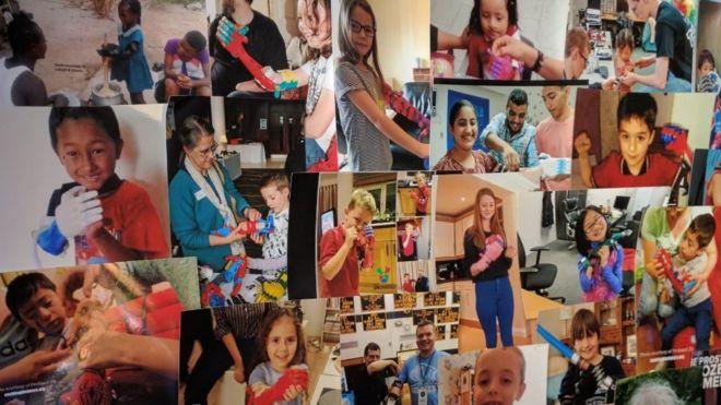 Familias de todo el mundo mandan fotos de sus hijos con los brazos fabricados en el jardín de una casa de Gales.