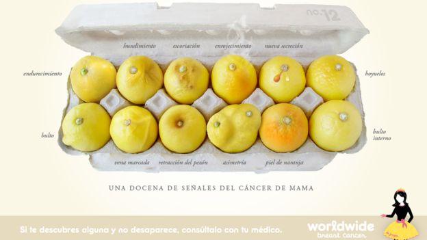 Un pezón retraído que antes no lo estaba es uno de los cambios en el pecho que las mujeres deberían consultar con un médico. (Foto, Worldwide breast cancer)