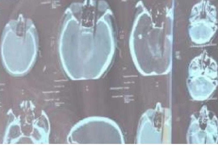 Una radiografía muestra el palo de bambú clavado en el cerebro.