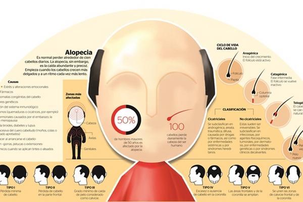 Del modelo al tratamiento de los cabello moskva