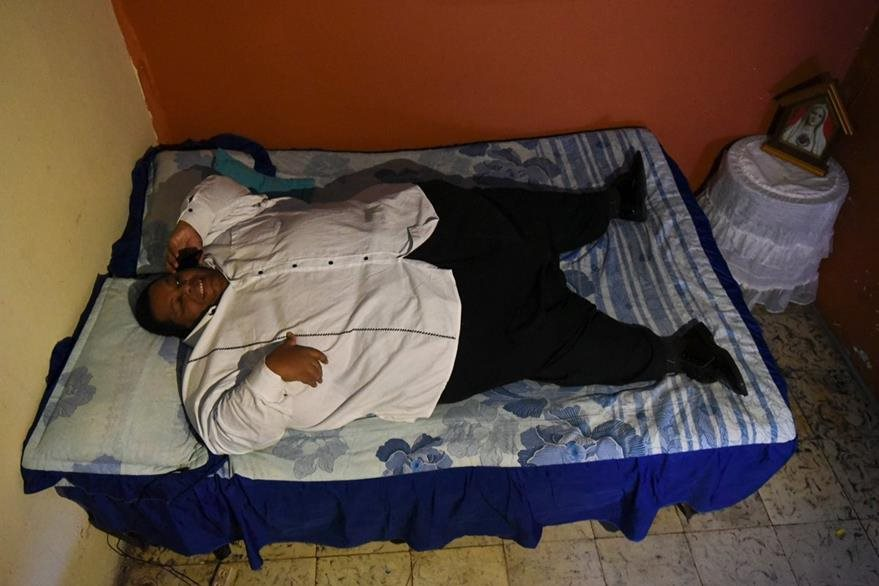 Óscar Vásquez, el hombre más obeso de Colombia, espera un cambio en su vida. (Foto Prensa Libre: AFP).