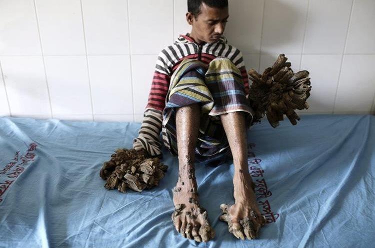 AA04 DACCA (BANGLADESH) 01/02/2016.- Abul Bajandar, un paciente diagnosticado con epidermodisplasia verruciforme, recibe atención médica en Dacca (Bangladesh) hoy, 1 de febrero de 2016. Abul sufre de esta enfermedad desde los 4 años. EFE/Abir Abdullah