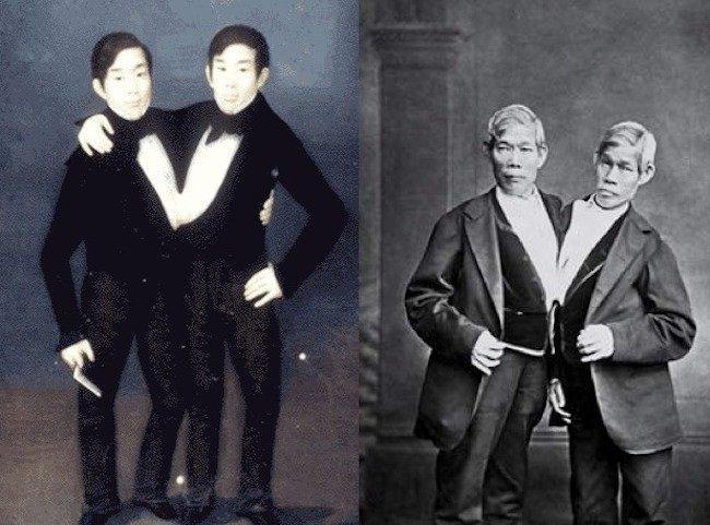 """Los gemelos Chang y Eng Bunker, por los cuales se conoce el origen de la palabra """"siameses"""" (Foto Prensa Libre: servicios)."""
