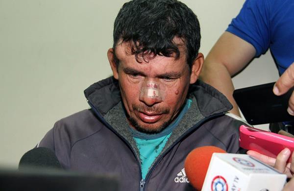 Gilberto Benítez habla con los medios, es acusado de violación y podría enfrentar una pena de 15 años de cárcel. (Foto Prensa Libre: AFP).
