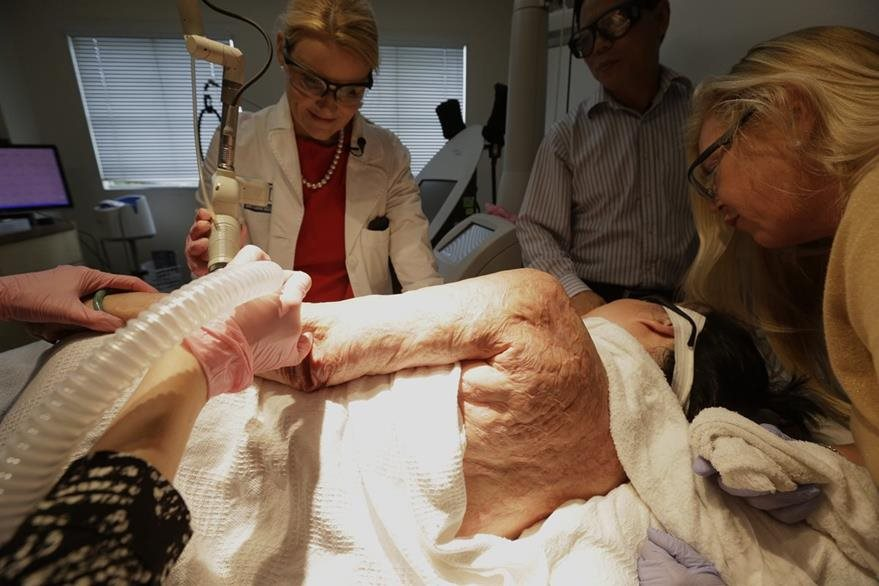 La doctora Jill Waibel, izquierda, aplica el tratamiento laser en un brazo de Kim Phuc. (Foto Prensa Libre: AP).