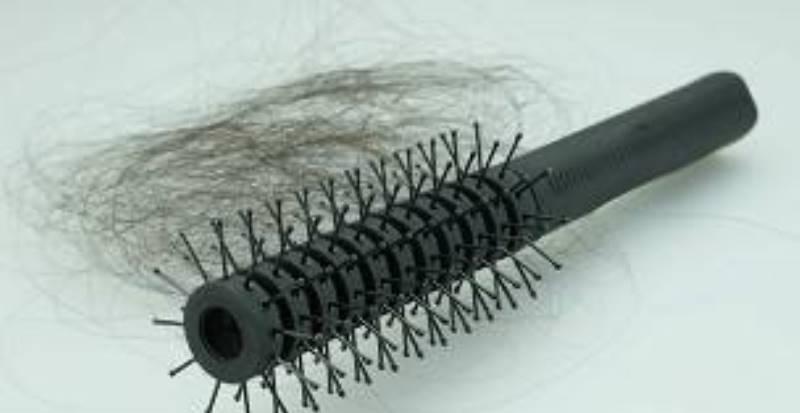 El paso previo a la calvicie es el debilitamiento del cabello. (THINKSTOCK)