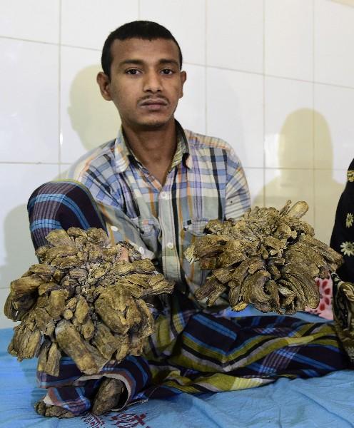 Abul Bajandar muestra las enormes verrugas en sus manos y pies.(AFP).