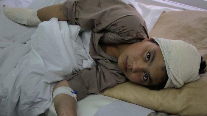 Un niño afgano en el hospital tras un ataque del Talibán en Kabul, en abril de 2016. GETTY IMAGES