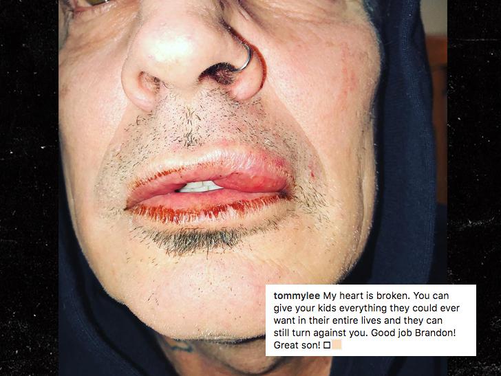 Tommy Lee subió esta fotografía a su Instagram para documentar el golpe que le propinó su hijo. (Foto Prensa Libre: TMZ).