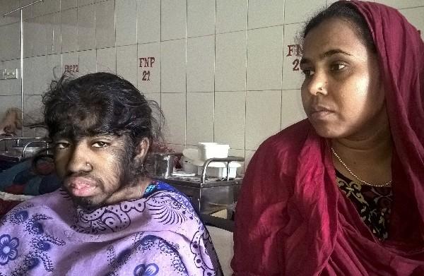 Bithi Akhtar es acompaña de su mama Beauty Begum. (AFP).