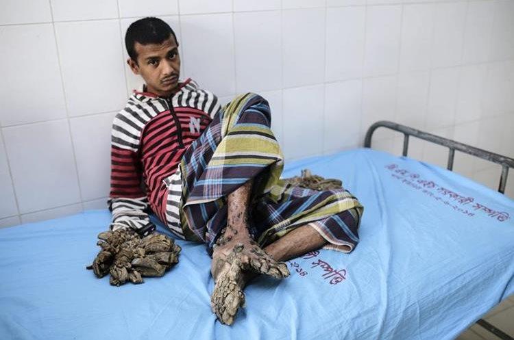 AA06 DACCA (BANGLADESH) 01/02/2016.- Abul Bajandar, un paciente diagnosticado con epidermodisplasia verruciforme, recibe atención médica en Dacca (Bangladesh) hoy, 1 de febrero de 2016. Abul sufre de esta enfermedad desde los 4 años. EFE/Abir Abdullah