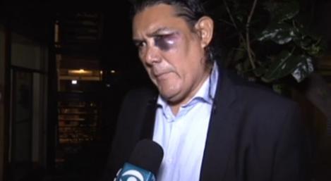 Jairo Alberto Arciniegas recibió un fuerte golpe del técnico venezolano Rafael Dudamel. (Foto Prensa Libre: Twitter @Gravesinho).
