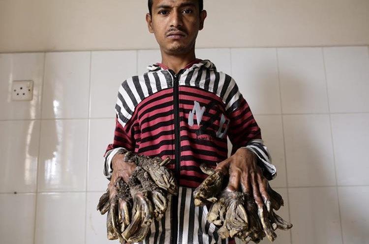 AA03 DACCA (BANGLADESH) 01/02/2016.- Abul Bajandar, un paciente diagnosticado con epidermodisplasia verruciforme, recibe atención médica en Dacca (Bangladesh) hoy, 1 de febrero de 2016. Abul sufre de esta enfermedad desde los 4 años. EFE/Abir Abdullah