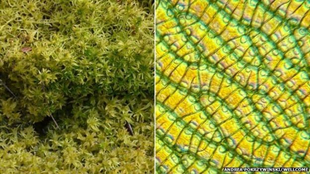 La estructura única del musgo de turbera hace que sus paredes porosas puedan absorber grandes cantidades de líquido. ANDREA POKRZYWINSKI/WELLCOME COLLECTION