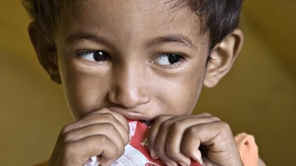Estudios anteriores sugerían que la desnutrición puede impedir el desarrollo de la flora microbiana en los intestino.