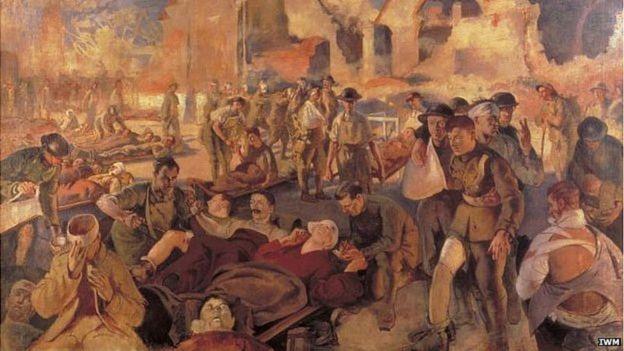 Durante las batallas llegaban cientos de heridos a la vez y era necesario un tratamiento rápido para evitar la infección. IWM