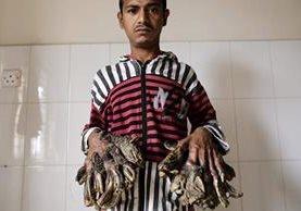 Abul Bajandar, de 26 años y oriundo de una pequeña aldea de la provincia meridional de Khulna, muestra la afección en sus manos. (Foto Prensa Libre: EFE).