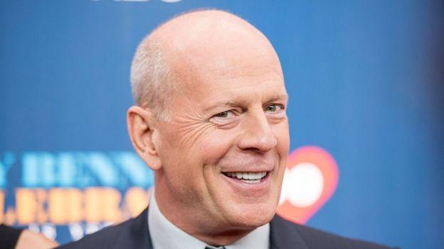 Puede que la calvicie te haga ver más masculino -como Bruce Willis-, pero ciertamente no te hace más hombre. (Getty images)