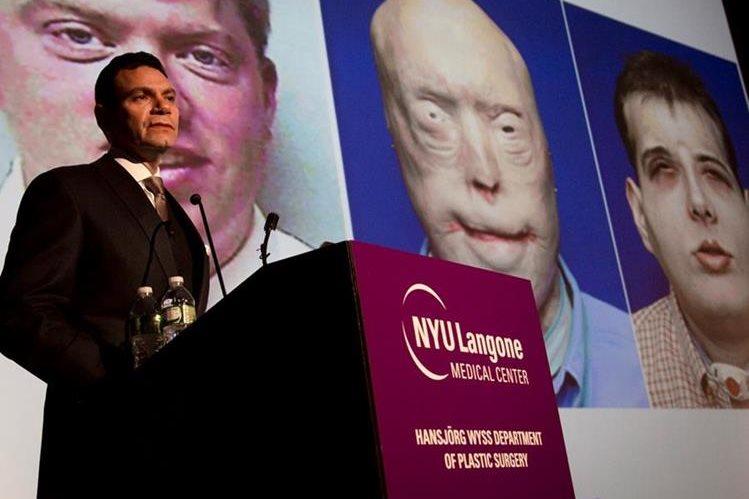 El médico Eduardo Rodríguez dirigió el equipo quirúrgico que realizó el trasplante de rostro de Patrick Hardison. (Foto Prensa Libre: AP)