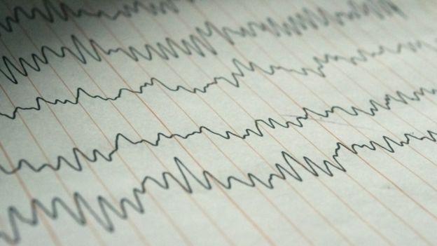 Aserinsky notó que el electroencefalograma registraba mayor actividad durante el sueño MOR. (Getty Images)