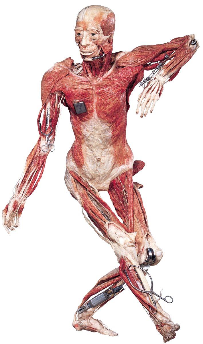 Cuerpos con prótesis se podrán apreciar en la muestra. (Foto Prensa Libre: Cortesía Body Worlds)