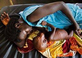 Imagen del 11 de octubre del 2016 que muestra a una madre amamantando a su hijo que sufre desnutrición aguda crónica en Sudán del Sur. (Foto Prensa Libre: AFP).