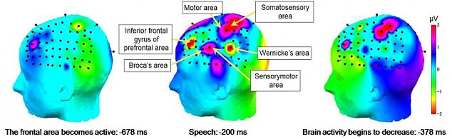 Imagen muestra los puntos que reaccionaron durante la investigación.