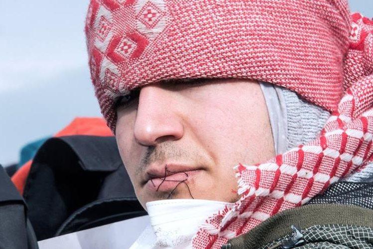 Un migrante muestra a periodistas su boca cosida en señal de protesta. (Foto Prensa Libre: AFP).