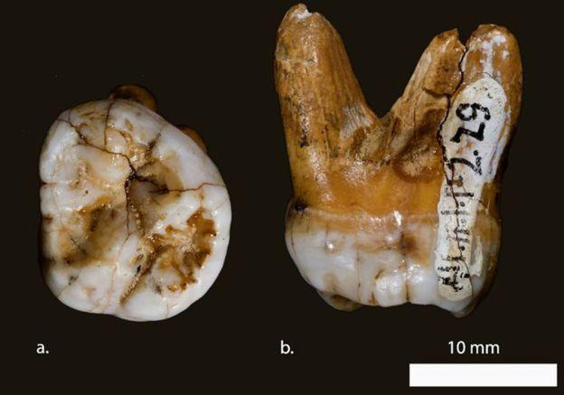 Este diente es uno de los pocos restos fósiles de denisovanos que se han encontrado hasta la fecha. (Foto: David Reich/Nature)