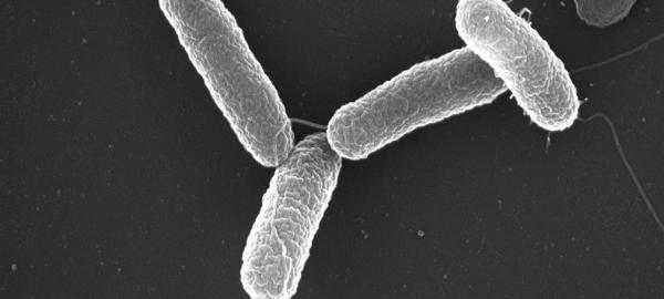 La salmonella typhi es una bacteria que puede encontrarse en alimentos de procedencia animal (Foto Prensa Libre: servicios).