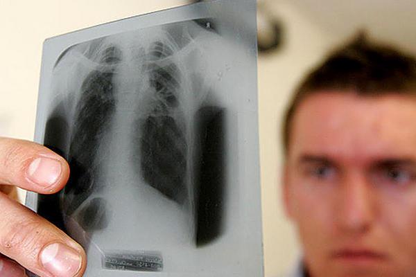 <p>La tuberculosis es una infección bacteriana que afecta principalmente a los pulmones.</p>