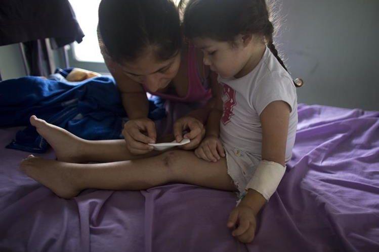 Ashley Pacheco recibe atenciones de su madre Oriana, en un hospital de Venezuela. (Foto Prensa Libre: AP).