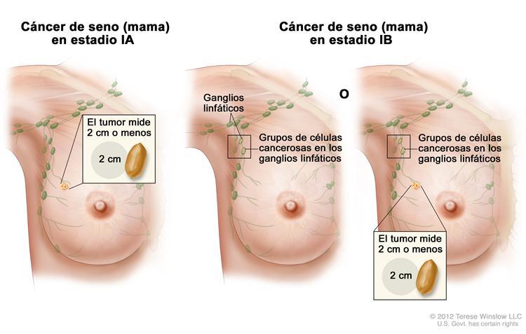 Tumores benignos de mama - holacom