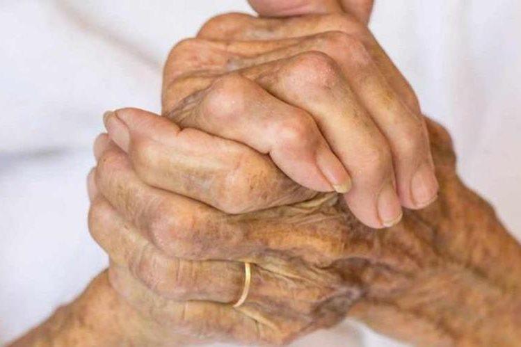 """Aunque a veces pueden producir comezón, las """"manchas de la edad"""" normalmente no son dolorosas ni requieren tratamiento."""