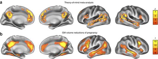 Imágenes muestran cómo cambia el cerebro de la mujer antes y después del embarazo. (Foto Prensa Libre, tomada de la revista Nature Neuroscience).