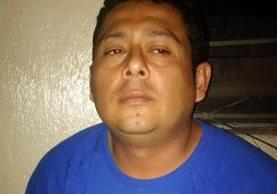 Óscar Wilfredo González Hernández, procesado por secuestro, fue operado de apendicitis. (Foto Prensa Libre: SP)