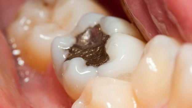 La capacidad de regeneración natural de los dientes es limitada. (GETTY IMAGES)