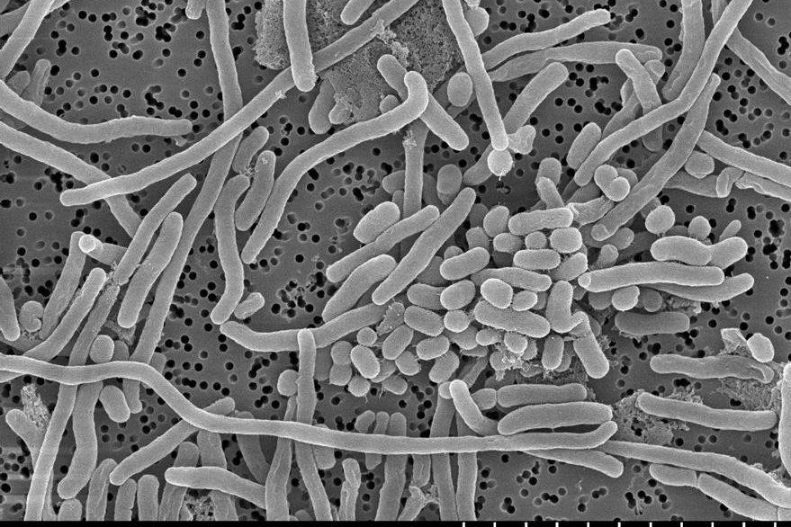 Imagen microscópica de la bacteria Acinetobacter baumannii. (Foto Prensa Libre, tomada del sitio de la Universidad del País Vasco)
