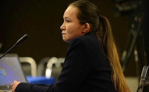 Linda Loaiza fue sometida a 15 cirugías como producto de los maltratos que recibió. (Foto cortesía de CEJIL)