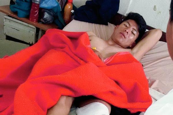 Yonathan Wilman Verriondo Noriega se recupera en un hospital. (Foto Prensa Libre: Óscar Figueroa)