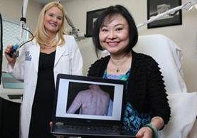 Kim Phuc ha sido tratada con unos 50 tipos de láser por la Dra. Jill Waibel en el Instituto de Dermatología y Laser de Miami, Miami Dermatology and Laser Institute. En la pantalla de la computadora se ve una de las primeras fotos que tomó Waibel de la espalda de Kim al inicio del tratamiento. EMILY MICHOT/MIAMI HERALD/TNS VIA GETTY IMAGES
