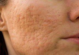 Las desagradables marcas del acné pueden desaparecer con varios tratamientos, según el tipo de cicatrices.
